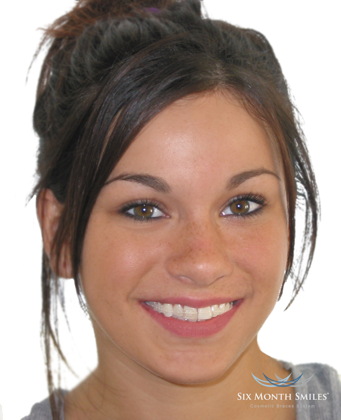This patient is wearing cosmetic braces and treated in 6 months